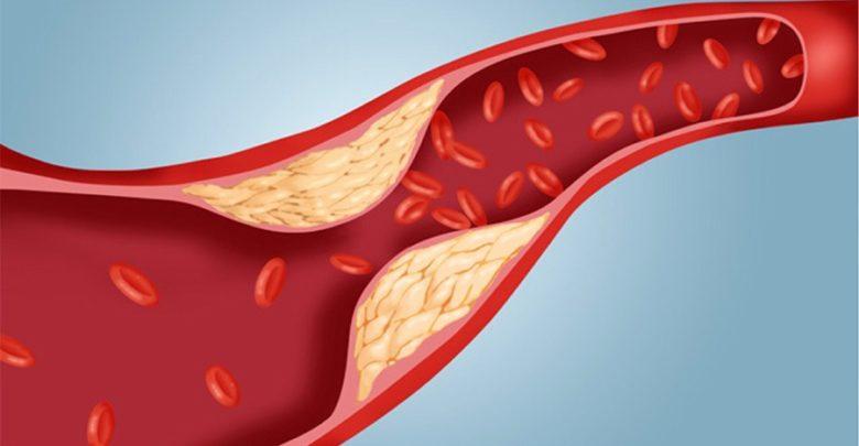 هل يمكن أن يكون «الكولسترول».. وراثي؟