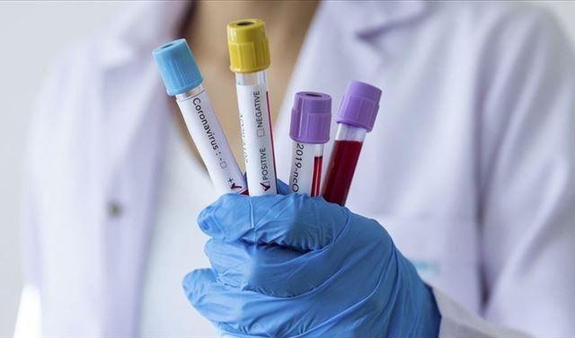 «الصحة العالمية»: 10 لقاحات ضد «كورونا» قيد التجارب السريرية